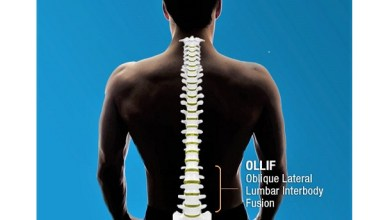 Photo of Inspired Spine releases study on the Clinical and Radiological outcomes of Oblique Lateral Lumbar Interbody Fusion