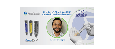 Photo of SpineFrontier's® First SacroFUSE® and NanoFUSE Case Performed in Latin America