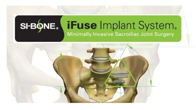 Photo of SI-BONE's iFuse Implant System Surpasses 40,000 Procedures