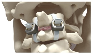 Photo of Implanet Granted Major Patent for Jazz Lock® Implant in the United States