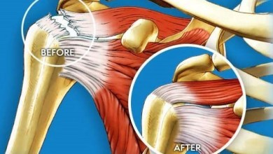 Photo of Ortho Regenerative Technologies selects US based specialized CRO, MCRA LLC, for its upcoming phase I/II rotator cuff human trial
