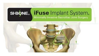 Photo of SI-BONE, Inc. Announces CIGNA Establishes Positive Coverage for MIS SI Joint Fusion using the iFuse Implant System