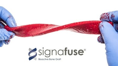 Photo of Bioventus Receives FDA Clearance of Strip Format of its SIGNAFUSE® Bioactive Bone Graft