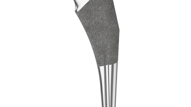 Photo of First Successful Hip Replacement Surgeries Completed with New Libertas® Taper Reduced Uncemented Femoral Stem