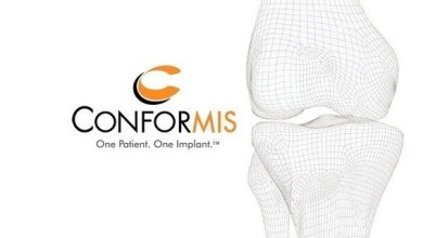 Photo of Conformis Announces 510(k) Clearance for iTotal® Identity PS