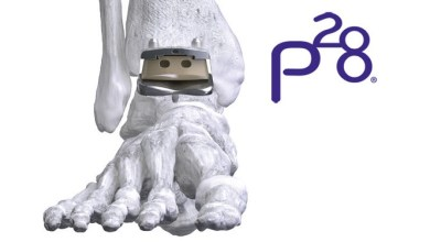 Photo of Paragon 28, Inc. is pleased to announce that the U.S. Food and Drug Administration has cleared the APEX 3D™ Total Ankle Replacement System