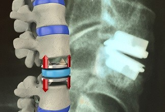 Photo of Indication Stretching in Cervical Disc Arthroplasty: A Problem?