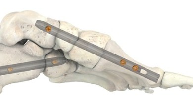 Photo of Stryker's T2 ICF Nail System Offers Surgeons New Option for Patients Suffering from Serious Foot Conditions