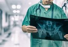 Photo of Medicare reimbursement rates for orthopedic trauma have fallen sharply