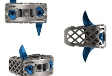 Photo of Genesys Spine Announces First 3D Printed Non-Screw Based Cervical Stand-Alone Cage