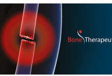 Photo of Bone Therapeutics' allogeneic cell therapy product, ALLOB, shows 90% fusion rate at 24 months in Phase IIa study in lumbar spinal fusion