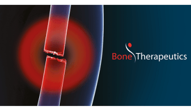 Photo of Bone Therapeutics, Link Health and Pregene to develop and commercialize the ALLOB allogeneic bone cell therapy platform in China and Southeast Asia