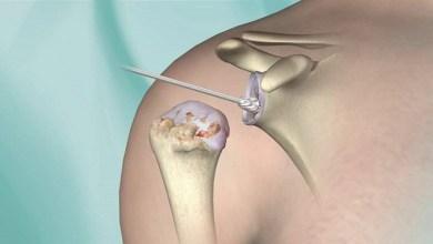 Photo of AAOS Shoulder & Elbow Registry Debuts Shoulder Arthroplasty Predictive Model