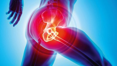 Photo of Trying to Make a Dent in Post-THA Pain? Adding Corticosteroids to Periarticular Injections May Work, Study Suggests