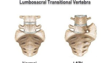 Photo of Dissatisfied Hip Arthroscopy Patients? Might be Lumbosacral Transitional Vertebrae