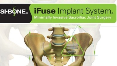 Photo of SI-BONE, Inc. Announces that Humana Establishes Exclusive Coverage for iFuse in MIS SI Joint Fusion Procedures