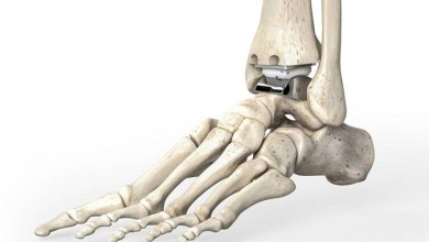 Photo of A First in Total Ankle Arthroplasty: Function Assessment at 7 years Follow-up