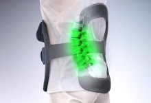 Photo of Publication of Data Shows High Fusion Rate in Patients Treated with PEMF Therapy Using the Orthofix SpinalStim Device