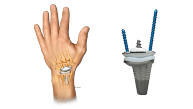 Photo of First Anika WristMotion® Total Wrist Arthroplasty Surgery Performed