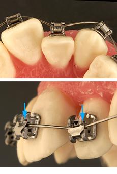 bracket-ortodoncia