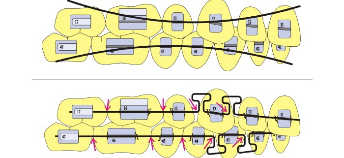 ortodoncia-biomecanica-bracket-aparatologia-formacion-18