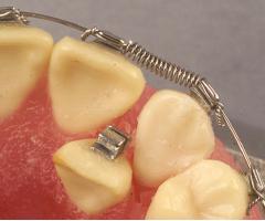ligaduras-alineacion-dental-ortodoncia-01