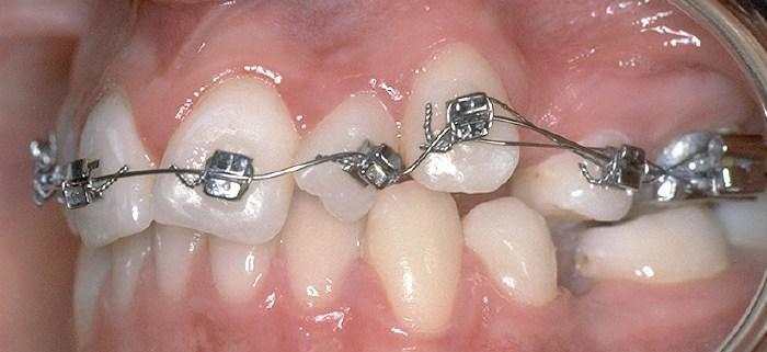ortodoncia-secuencia-tratamiento