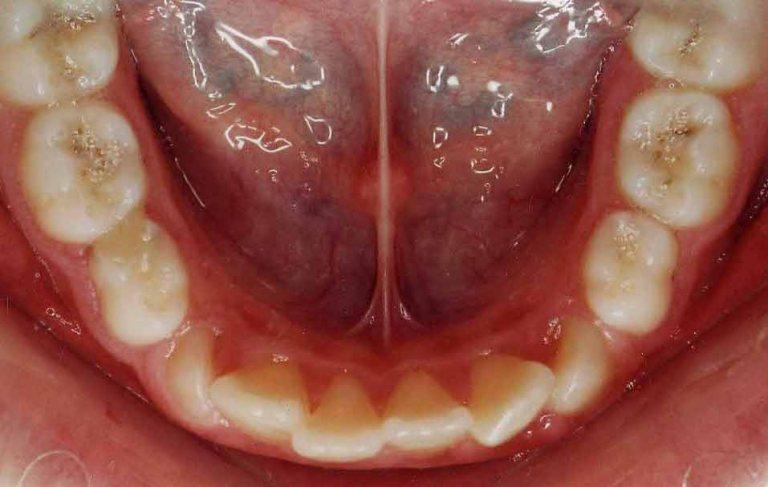 inghesuire dentara - ortodontie