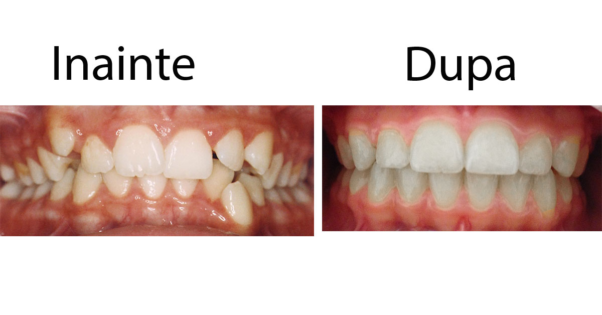 tratament aparat dentar fix
