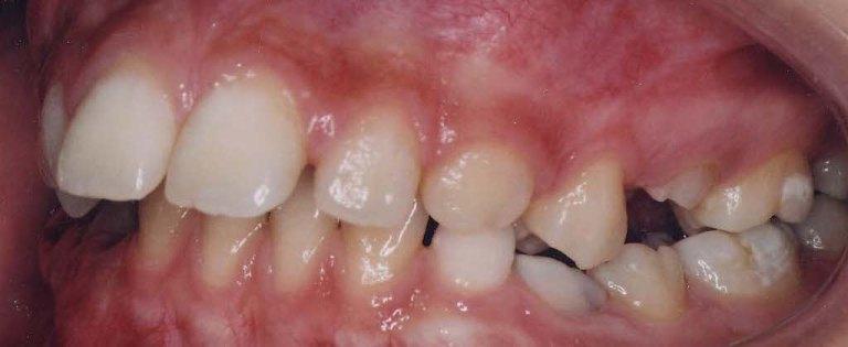 aparat dentar safir - inainte