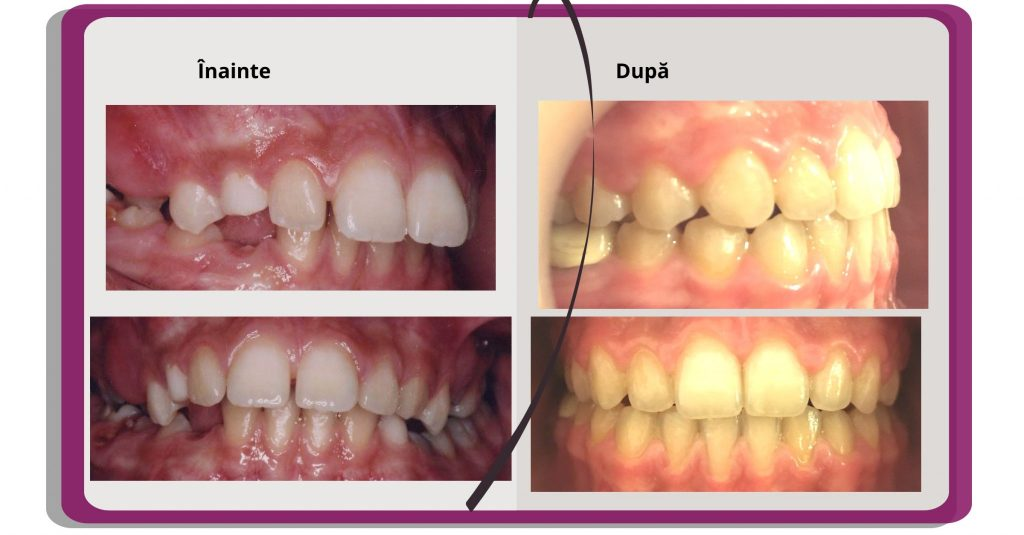 rezultate aparat dentar safir