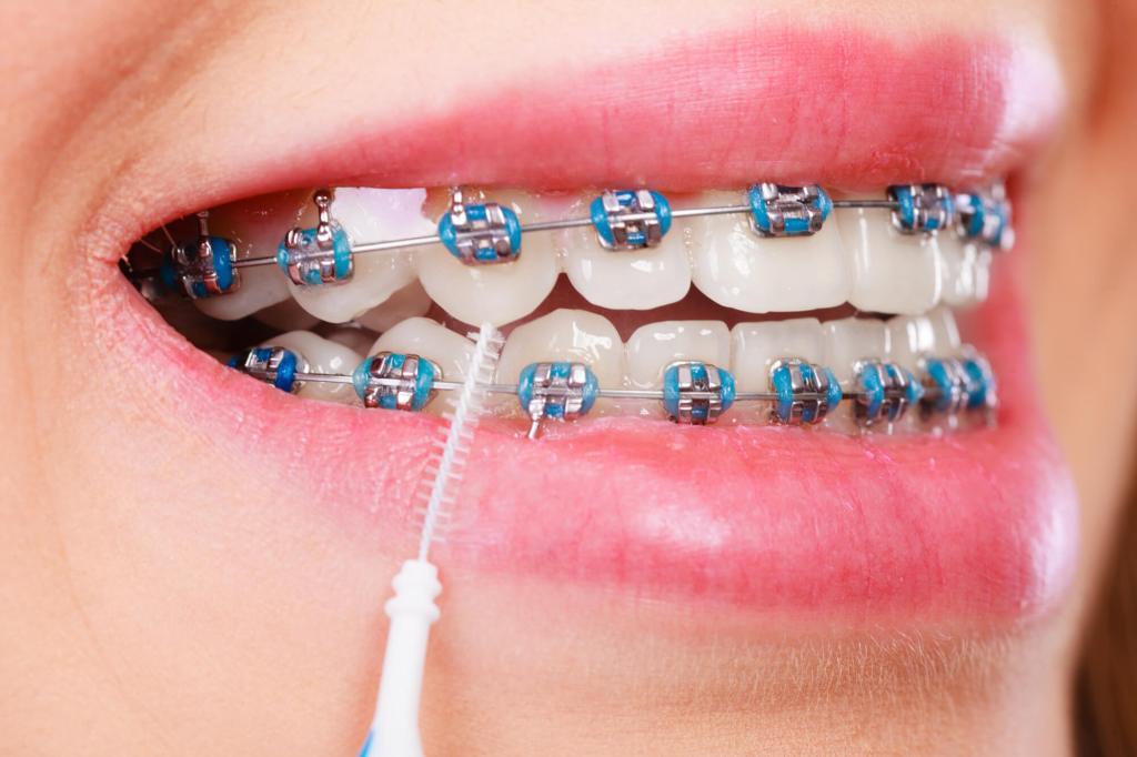 aparelho fixo de ortodontia