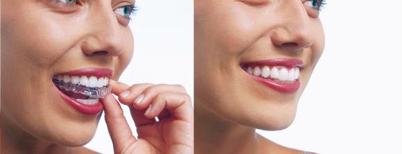 Ortodoncia Invisible Como Funciona