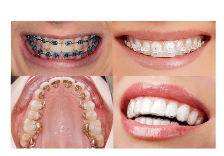 aparat ortodontyczny estetyczny i Invisalign na zębach