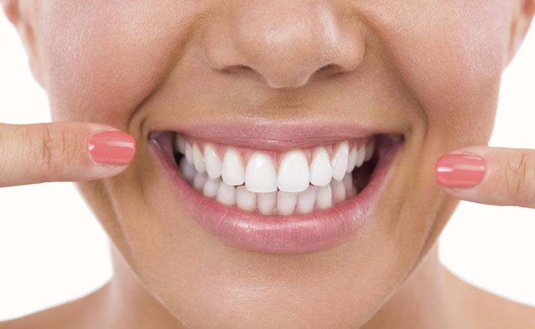Fazer Clareamento Dentario Antes Ou Depois Do Tratamento Ortodontico