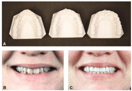 Efeitos da forma do arco sobre os incisivos. De Sarver e Ackerman, 2003.