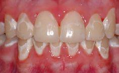 cárie ortodontia