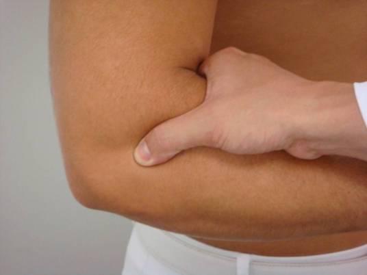 Dor na região lateral do cotovelo pode ser sinal de Epicondilite Lateral