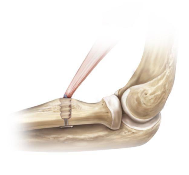 Fixação do biceps com auxílio de 01 parafuso