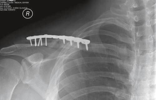 Cirurgia clavicula quebrada