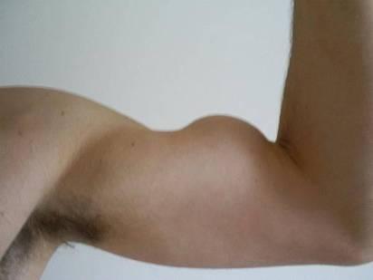 Lesão do biceps com sinal do Popeye