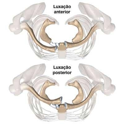 Luxação esternoclavicular anterior e posterior