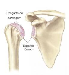 Na artrose do ombro ocorre um desgaste da cartilagem