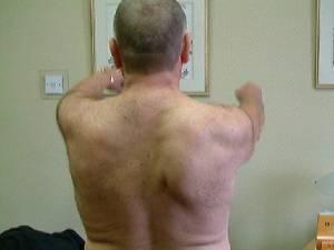 Discinesia da escápula ou escápula alada por desequilíbrio muscular