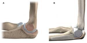 A) Artroplastia de interposição B) Artroplastia total do cotovelo