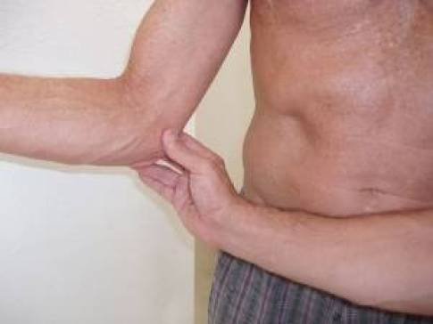 Região medial do cotovelo onde os pacientes referem a dor na epicondilite medial