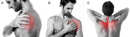 Locais comuns de dor por doenças do ombro (A e B) e por doenças da coluna cervical (C)