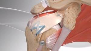 Reconstrução da cápsula superior do ombro