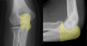 Radiografias do cotovelo (olecrano em amarelo)