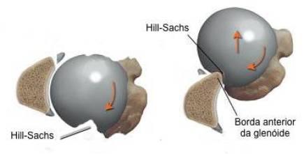 Figura demonstrando como surge uma lesão de Hill-Sachs com a colisão da cabeça do úmero contra a glenóide